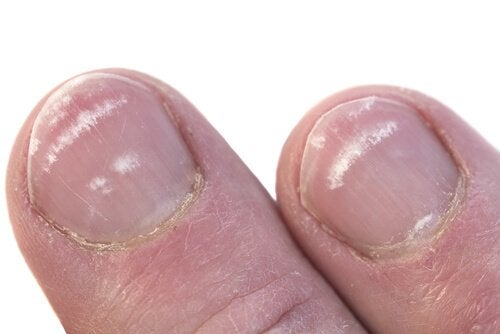 Fingernägel-Flecken