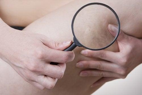 Frau untersucht Cellulite