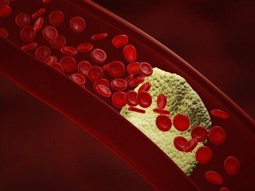 Arterien