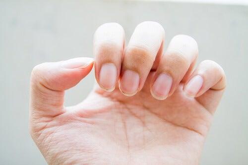 Brüchige Nägel können auf Probleme mit dem Darm hinweisen
