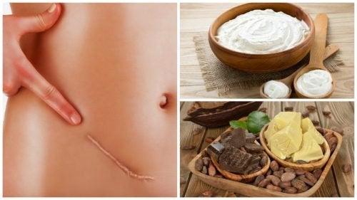 Die 7 besten Heilmittel gegen Narben bevor sie entstehen