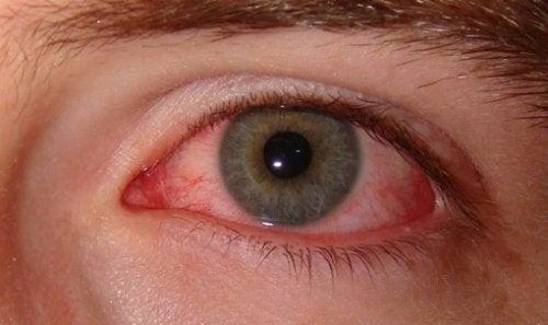 Augenschmerzen als Anzeichen für Angst