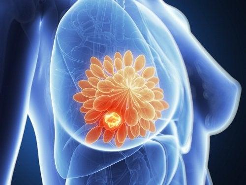 Grillfleisch und Brustkrebs - erhöhtes Risiko?