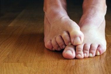 Füße mit Nagelpilz