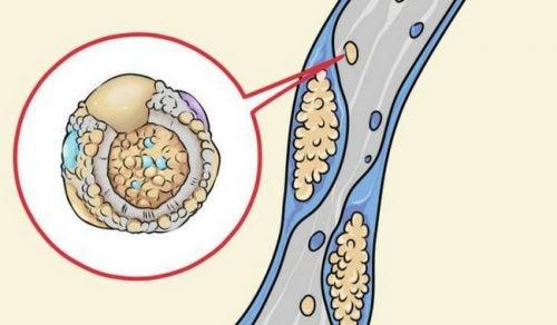 Strategien aus der Küche, um den Cholesterinspiegel zu senken