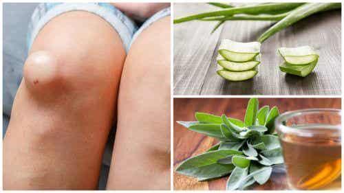 Flüssigkeit im Knie: 5 entzündungshemmende Naturheilmittel