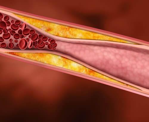 Orangenschalen gegen Cholesterin