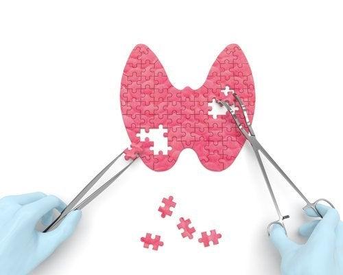 Versteckte Anzeichen einer Schilddrüsenunterfunktion