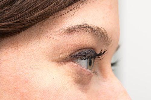 dunklen Augenringen vorbeugen