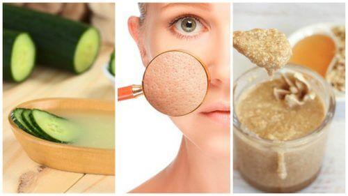 5 Naturheilmittel für kleinere Poren