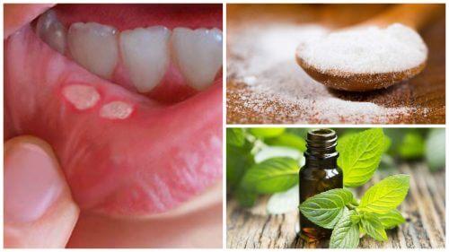 7 Hausmittel um die Heilung von Aphthen im Mund zu beschleunigen
