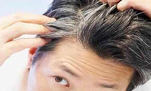 6 Vitalstoffe gegen das frühzeitige Ergrauen der Haare