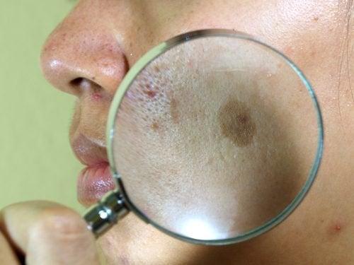 7 natürliche Behandlungen gegen den Leberfleck im Gesicht