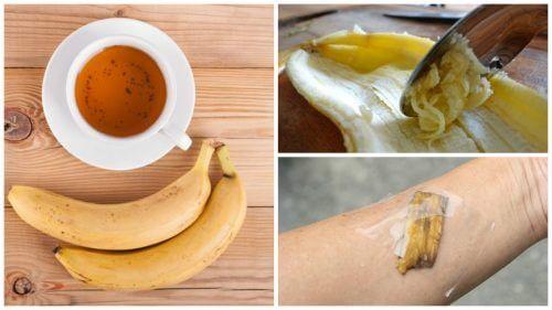 5 Verwendungsmöglichkeiten von Bananenschalen als Naturheilmittel