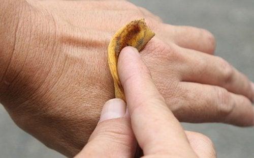 Bananenschalen gegen Warzen