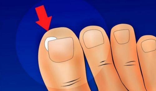 Wie kann man eingewachsene Nägel verhindern?