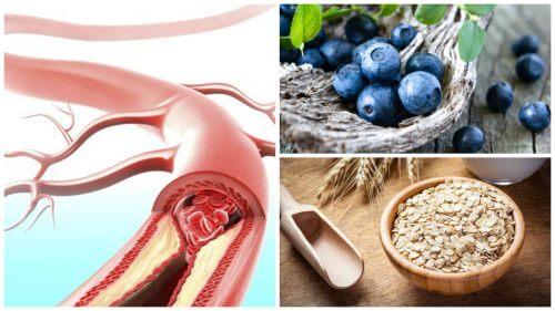 Gesunde Arterien: Diese 9 Nahrungsmittel können helfen