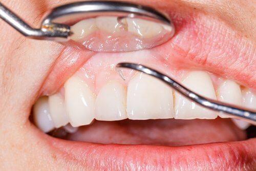 14 Gründe für Zahnfleischbluten nach dem Zähneputzen