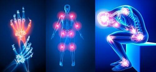 7 Gründe für Gelenkschmerzen