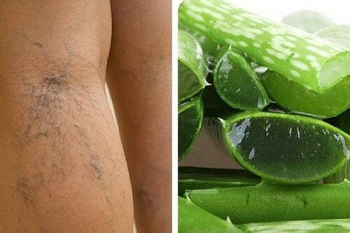 Durchblutung in den Beinen verbessern