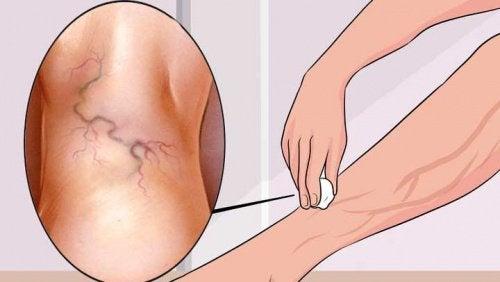 8 Übungen zur Behandlung von Krampfadern