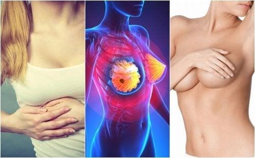9 Symptome von Brustkrebs, die jede Frau kennen sollte
