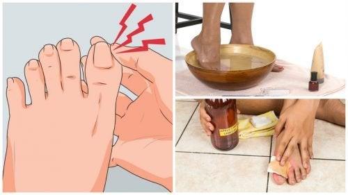 6 Hausmittel zur Behandlung eingewachsener Nägel