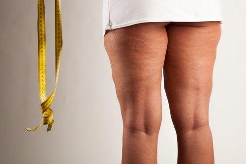 Frau mit Lipödem an den Beinen