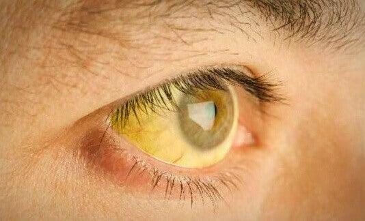 Gelbes Auge bei vergifteter Leber