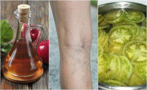 Grüne Tomaten und Essig gegen Krampfadern