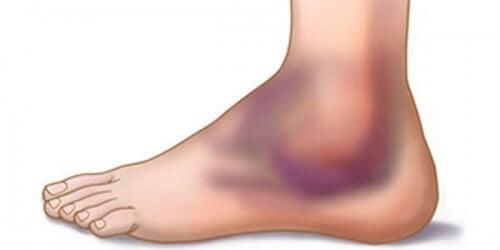 6 Empfehlungen zur Vorbeugung und Behandlung eines verstauchten Knöchels