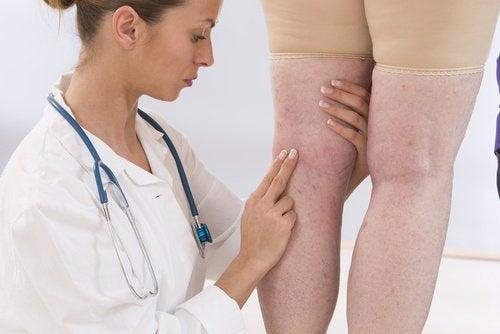 Eine Ärztin untersucht Flüssigkeitseinlagerungen in den Beinen eines Patienten und empfiehlt die Eigenschaften von Kokoswasser.