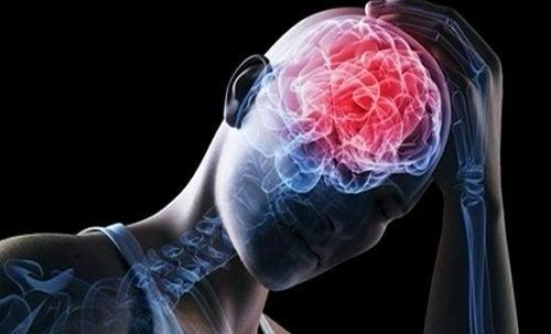 Ausbruch von häufig auftretende zerebrovaskuläre Erkrankungen