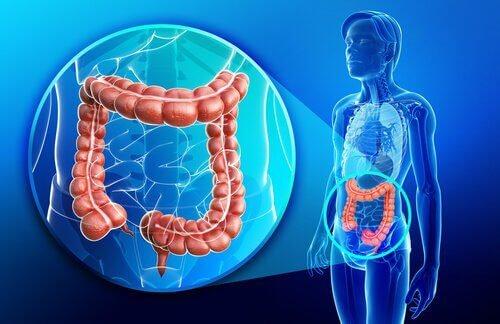 Die Symptome von Morbus Crohn