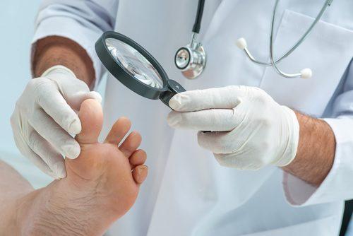 Knoblauch zur Behandlung von Fußpilz