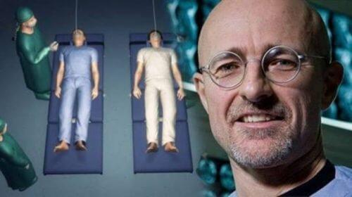 Die erste Kopftransplantation wird in weniger als 10 Monaten durchgeführt werden