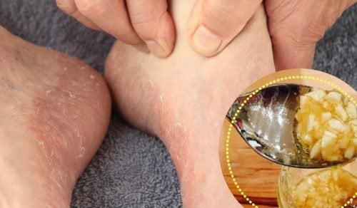 6 natürliche Produkte zur Behandlung von Fußpilz