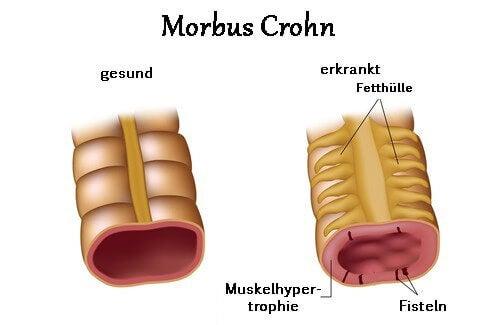 Symptome von Morbus Crohn