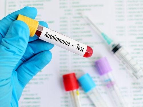 Systematischer Lupus Erythematodes kann verschiedene Ursachen haben.