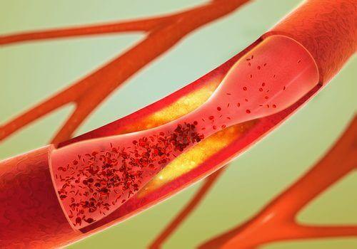 Eine verengte Arterie kann zu einem Schlaganfall führen.