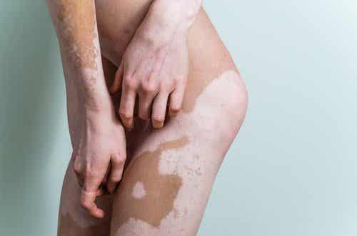 Weiße Flecken auf der Haut: Kann man Vitiligo behandeln?