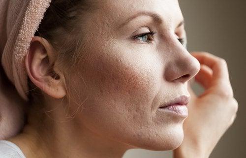Hautbeschwerden als Anzeichen für einen hohen Cortisolspiegel