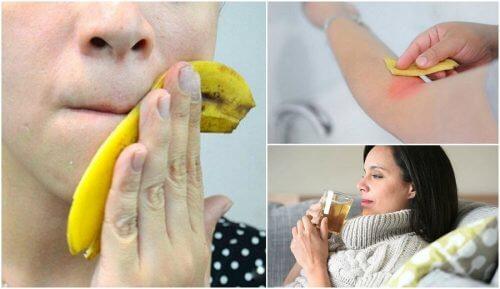 Bananenschalen verwenden? 8 interessante Möglichkeiten