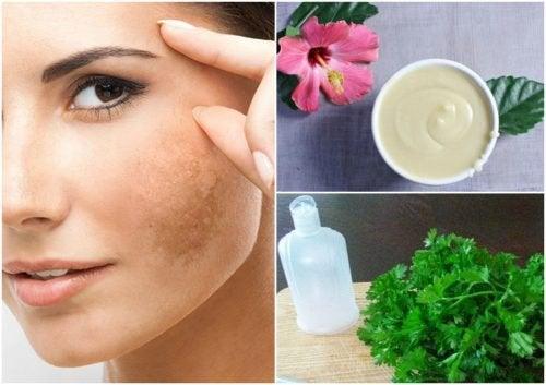5 Tipps zur Behandlung von Pigmentflecken
