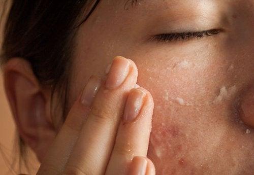 Gesichtsmasken mit Natron auftragen