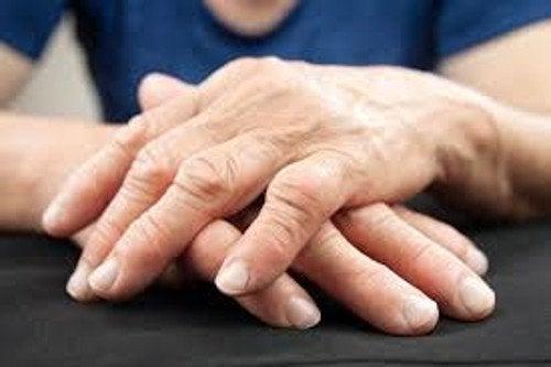 Übersäuerung kann zu Arthritis in den Händen führen.