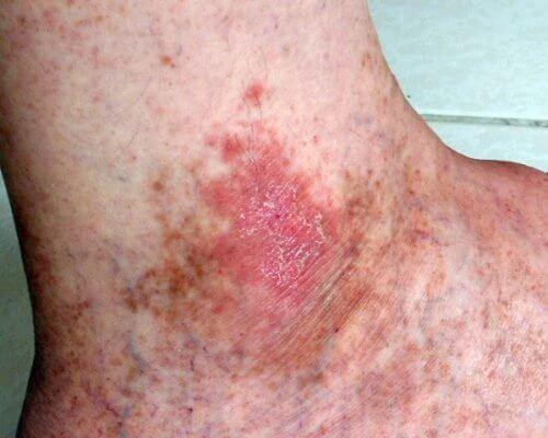 Hautkrebs rechtzeitig erkennen durch schlecht heilende Wunden