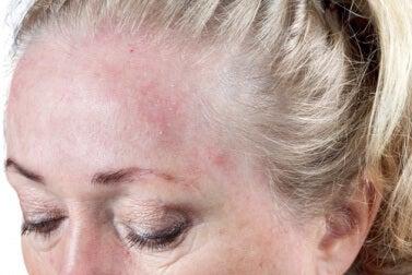 Hautinfektionen können entstehen wenn man sich mit nassen Haaren ins Bett legt