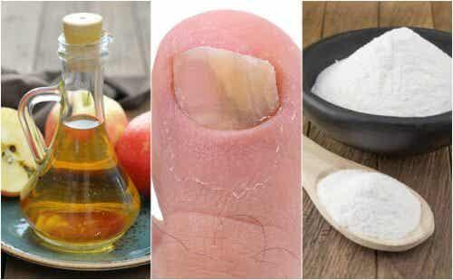 Nagelpilz natürlich behandeln mit Apfelessig und Natron