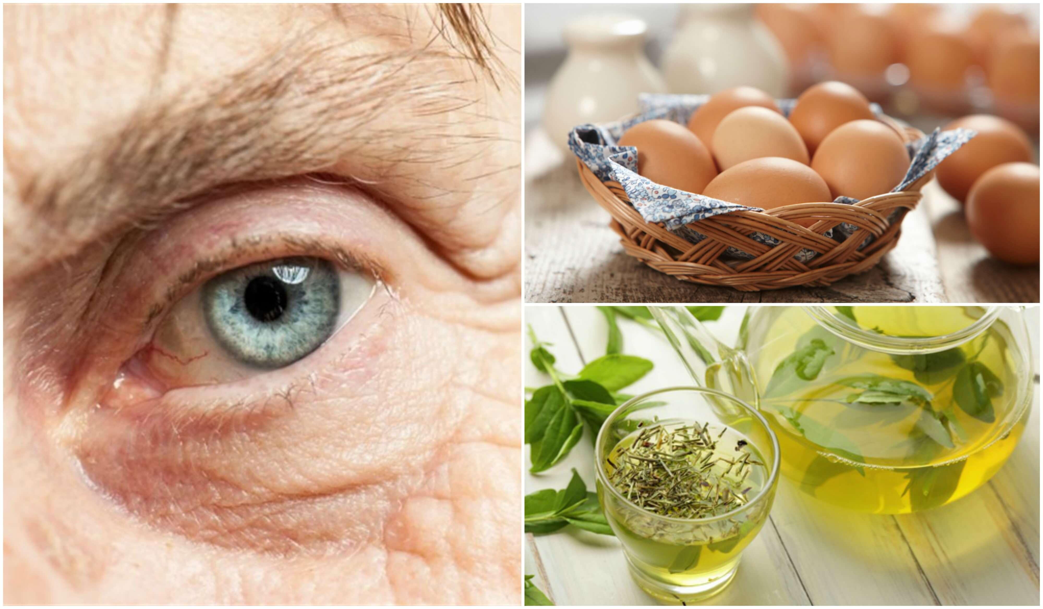 Ernährung zur Vorsorge gegen Makuladegeneration